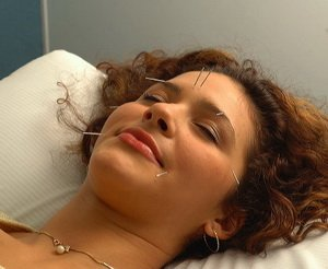 Alive Magazine - Cosmetic Acupuncture by Dr. Maryam